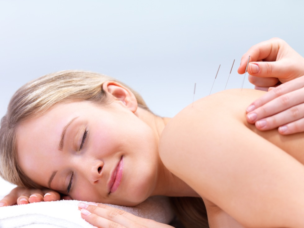 Service For Acupuncture, Freehold, NJ Image - Advanced Wellness