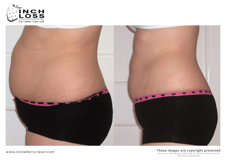 Inch-Loss-Before-and-After-06-768x543